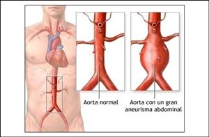 Obat Alami Aneurisma Aorta